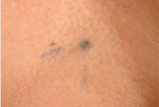 Hình xăm xạ trị