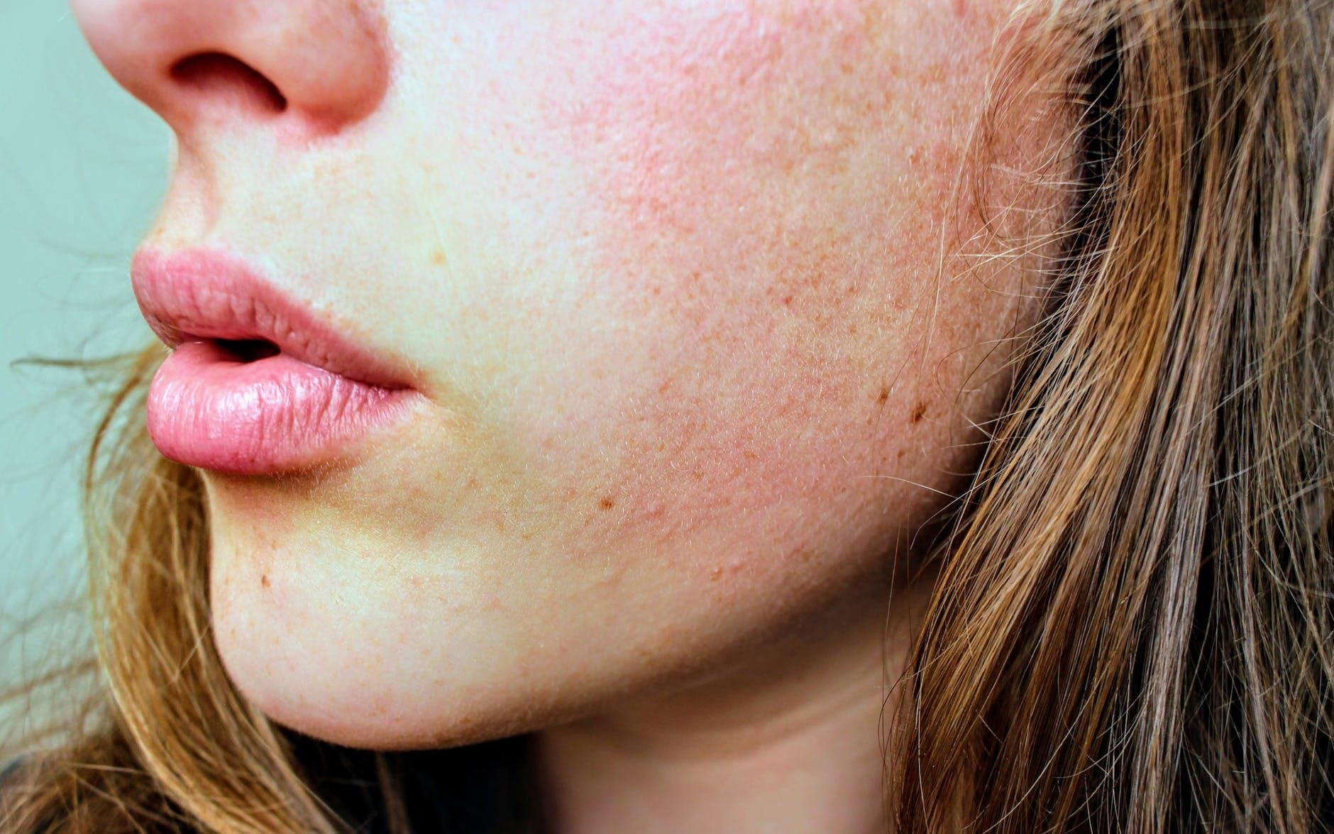 Ảnh hưởng của xạ trị lên da