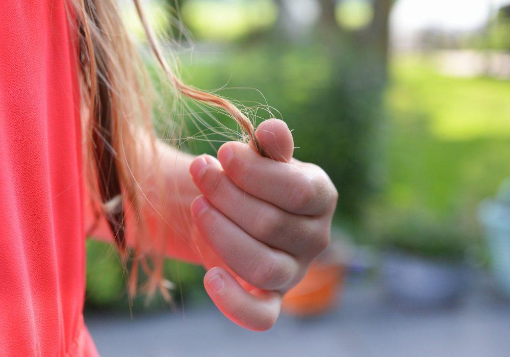 rụng tóc do xạ trị