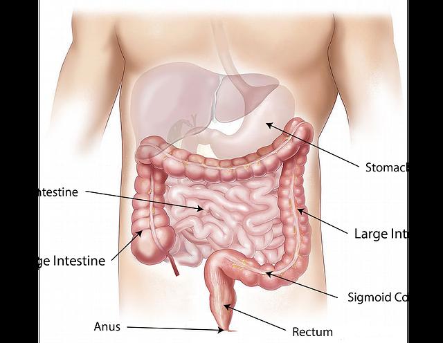 Điều trị ung thư ảnh hưởng đến ruột như thế nào?