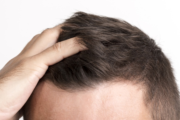 Rụng tóc do xạ trị não