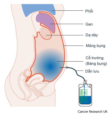 Điều trị tràn dịch ổ bụng