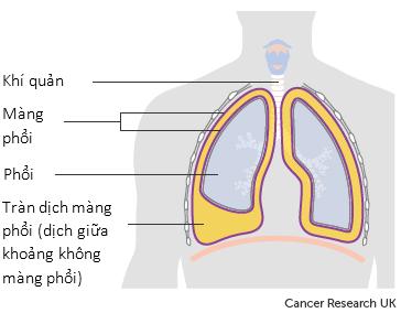 Điều trị tràn dịch màng phổi